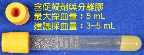 /labmed/DocLib/採檢容器/47黃頭管.jpg